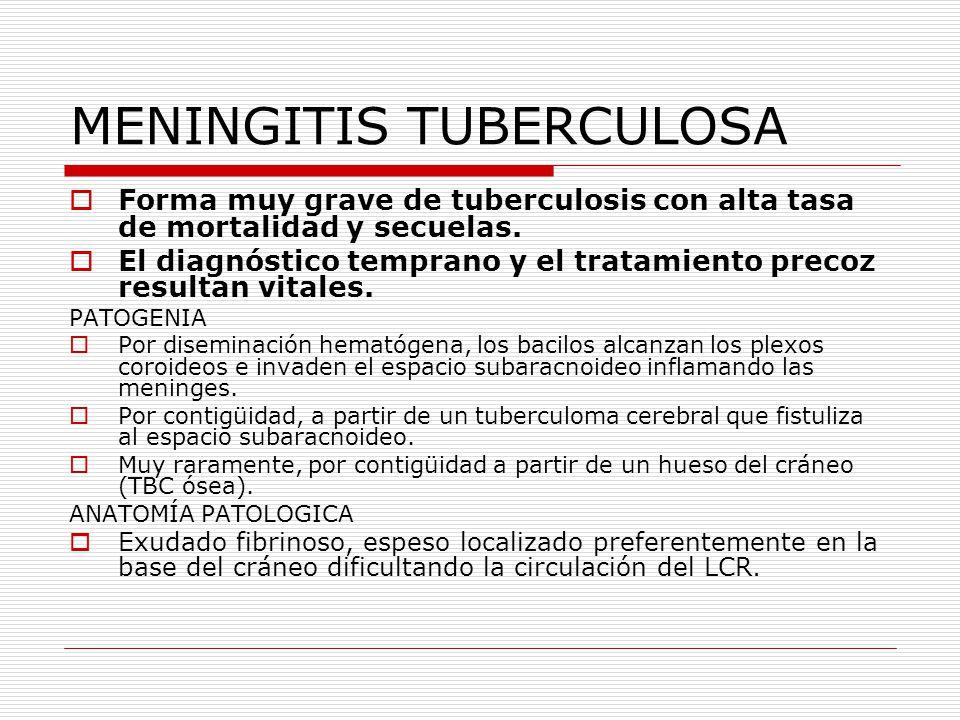 MENINGITIS TUBERCULOSA Forma muy grave de tuberculosis con alta tasa de mortalidad y secuelas. El diagnóstico temprano y el tratamiento precoz resulta