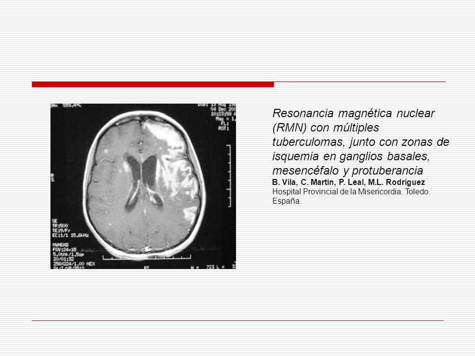 Resonancia magnética nuclear (RMN) con múltiples tuberculomas, junto con zonas de isquemia en ganglios basales, mesencéfalo y protuberancia B. Vila, C