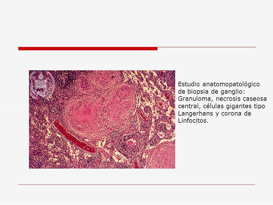 Estudio anatomopatológico de biopsia de ganglio: Granuloma, necrosis caseosa central, células gigantes tipo Langerhans y corona de Linfocitos.