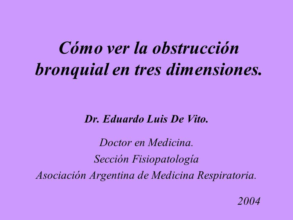 Cómo ver la obstrucción bronquial en tres dimensiones.