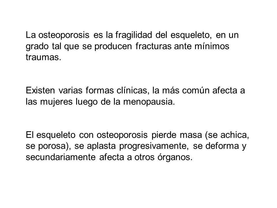 La osteoporosis es la fragilidad del esqueleto, en un grado tal que se producen fracturas ante mínimos traumas. Existen varias formas clínicas, la más