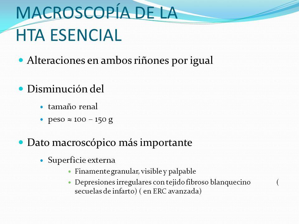 MACROSCOPÍA DE LA HTA ESENCIAL Alteraciones en ambos riñones por igual Disminución del tamaño renal peso 100 – 150 g Dato macroscópico más importante