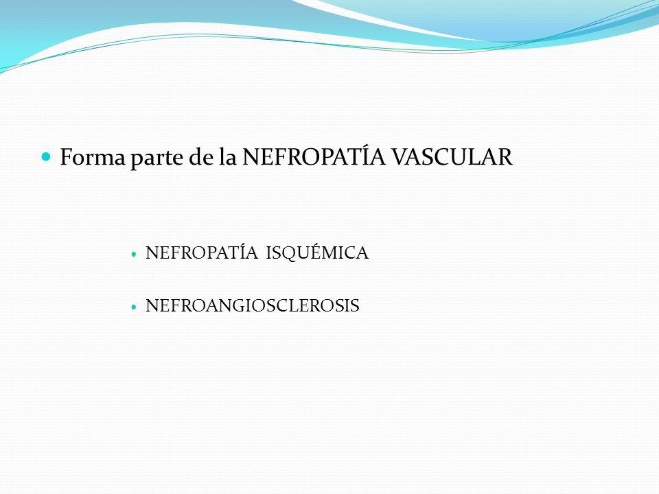 Forma parte de la NEFROPATÍA VASCULAR NEFROPATÍA ISQUÉMICA NEFROANGIOSCLEROSIS