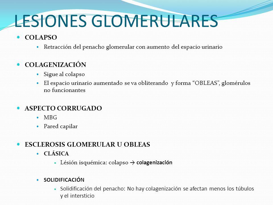 LESIONES GLOMERULARES COLAPSO Retracción del penacho glomerular con aumento del espacio urinario COLAGENIZACIÓN Sigue al colapso El espacio urinario a