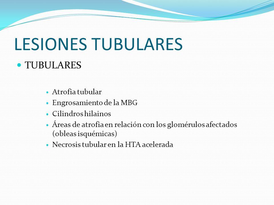 LESIONES TUBULARES TUBULARES Atrofia tubular Engrosamiento de la MBG Cilindros hilainos Áreas de atrofia en relación con los glomérulos afectados (obl