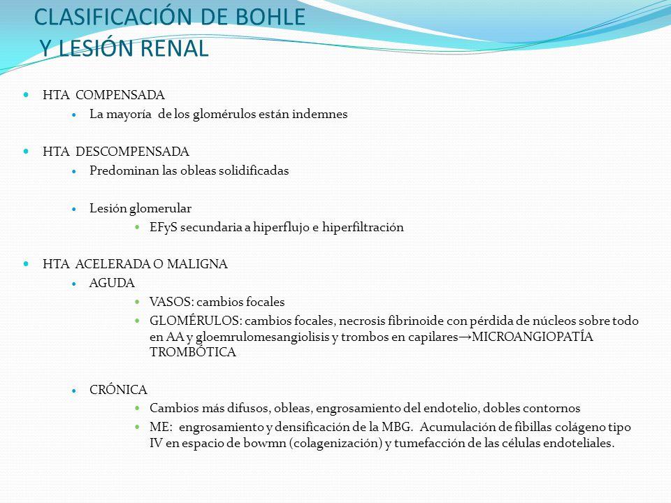 CLASIFICACIÓN DE BOHLE Y LESIÓN RENAL HTA COMPENSADA La mayoría de los glomérulos están indemnes HTA DESCOMPENSADA Predominan las obleas solidificadas