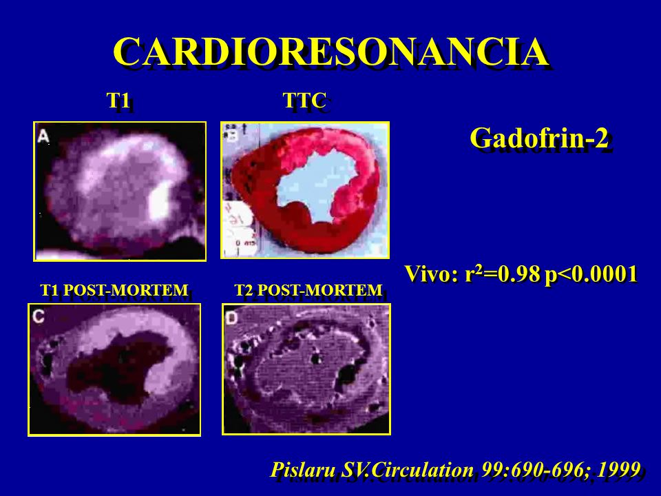 CARDIORESONANCIA Pislaru SV.Circulation 99:690-696; 1999 Vivo: r 2 =0.98 p<0.0001 Gadofrin-2 T1 T1 POST-MORTEM T2 POST-MORTEM TTC