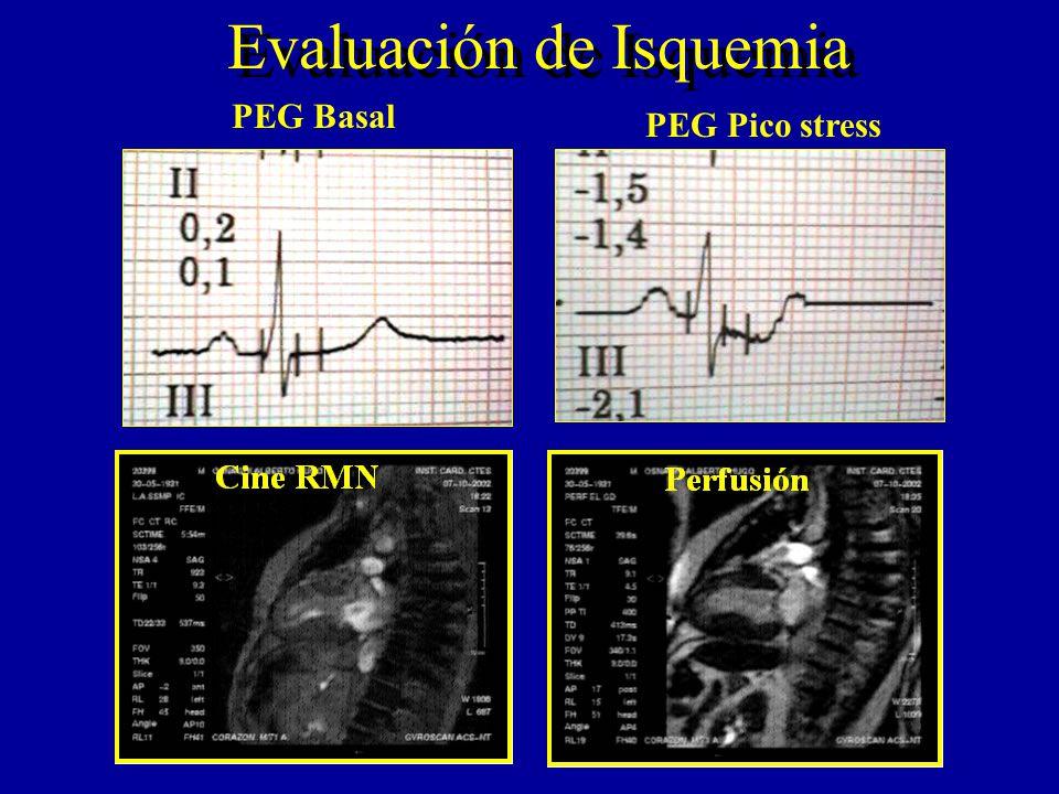 Evaluación de Isquemia PEG Basal PEG Pico stress