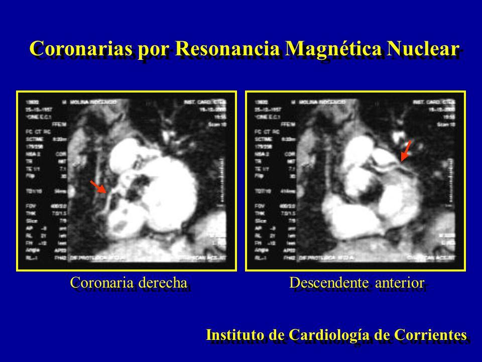 Coronarias por Resonancia Magnética Nuclear Instituto de Cardiología de Corrientes Coronaria derecha Descendente anterior