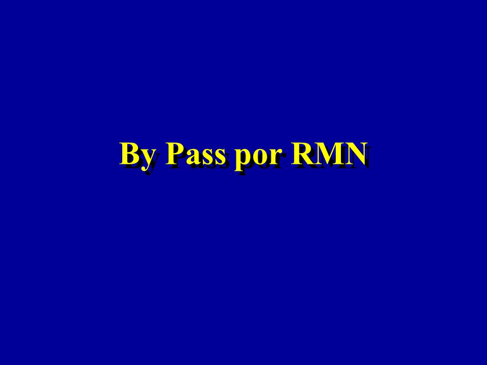 By Pass por RMN
