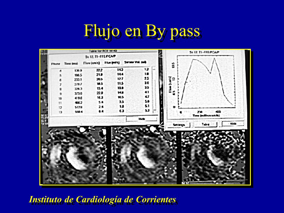 Flujo en By pass Instituto de Cardiología de Corrientes