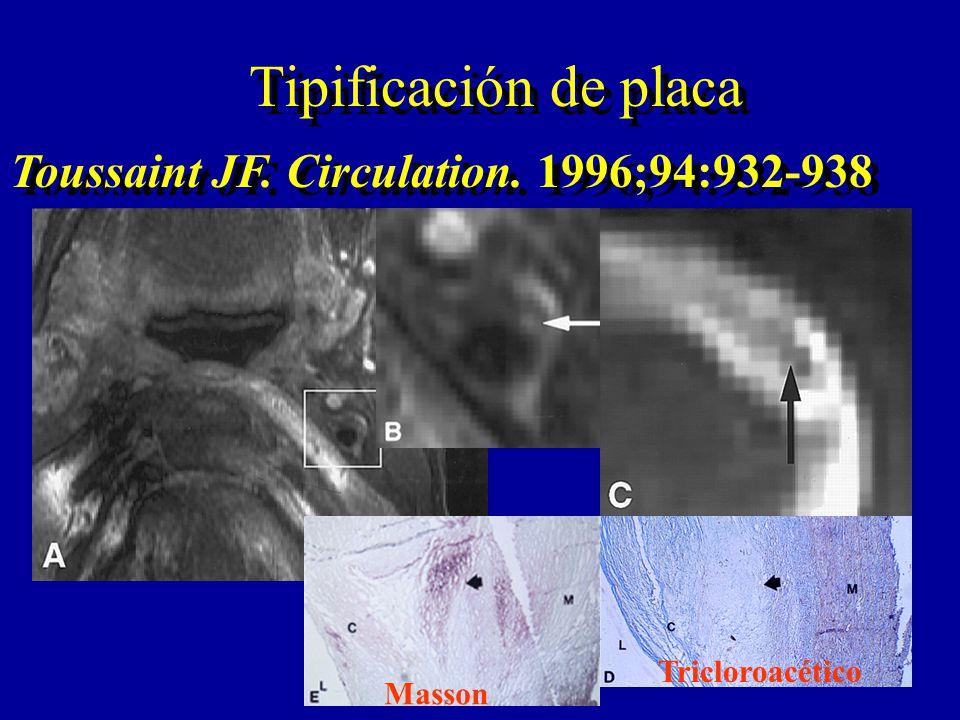 Tipificación de placa Tricloroacético Masson Toussaint JF. Circulation. 1996;94:932-938