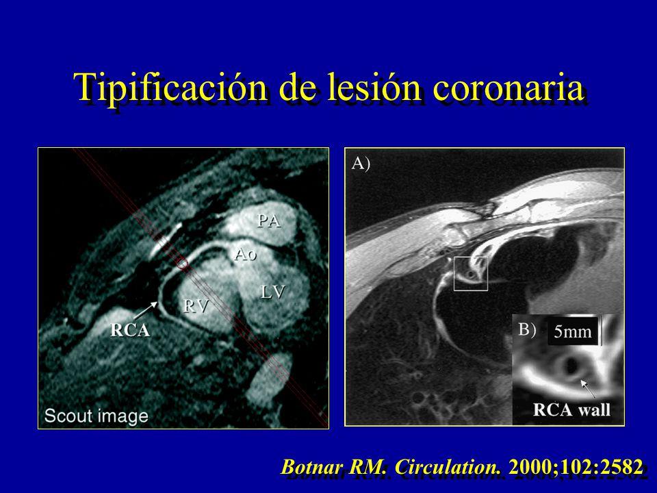 Tipificación de lesión coronaria Botnar RM. Circulation. 2000;102:2582