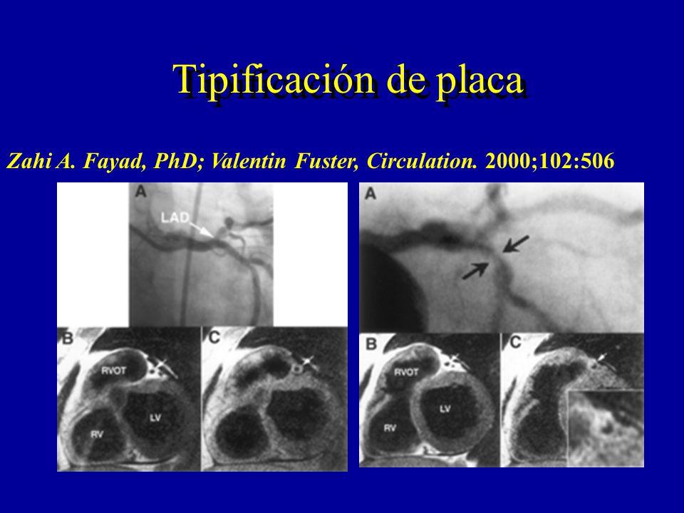 Tipificación de placa Zahi A. Fayad, PhD; Valentin Fuster, Circulation. 2000;102:506