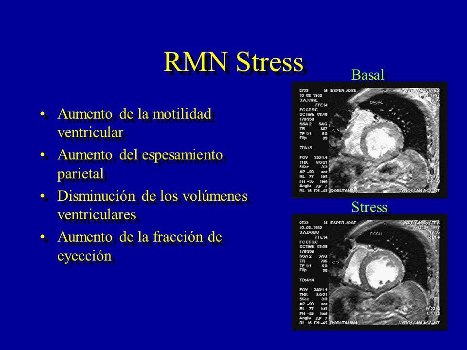 RMN Stress Aumento de la motilidad ventricular Aumento del espesamiento parietal Disminución de los volúmenes ventriculares Aumento de la fracción de
