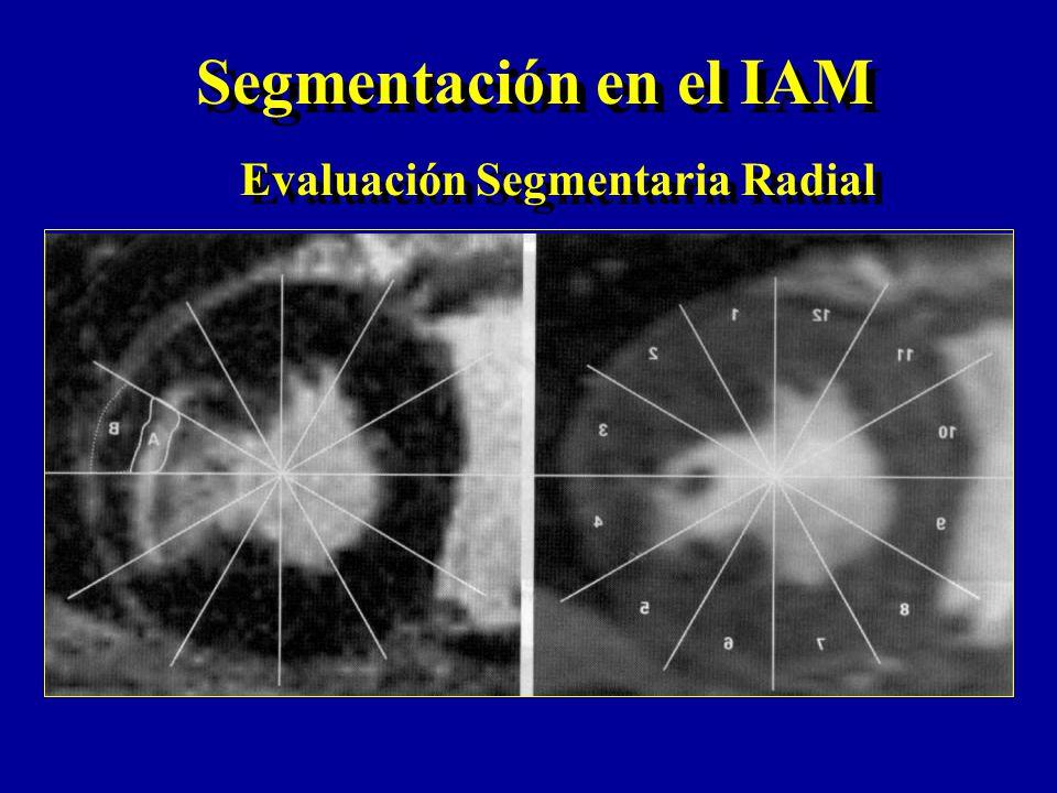 Evaluación Segmentaria Radial Segmentación en el IAM