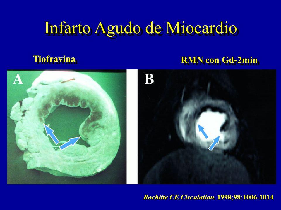 Rochitte CE.Circulation. 1998;98:1006-1014 Tiofravina RMN con Gd-2min Infarto Agudo de Miocardio