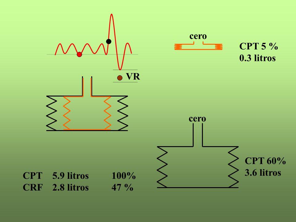 CPT 5 % 0.3 litros CPT 60% 3.6 litros VR CPT 5.9 litros100% CRF 2.8 litros47 % cero