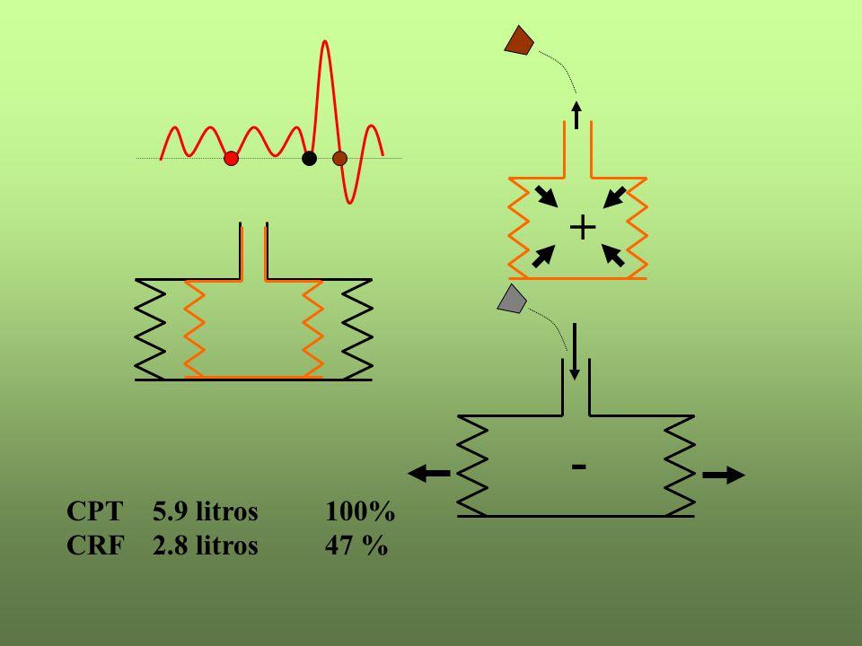 CPT 5.9 litros100% CRF 2.8 litros47 % + -
