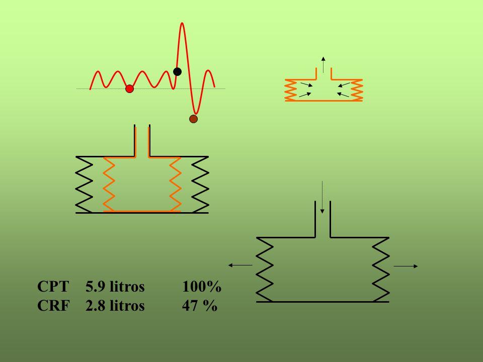 CPT 5.9 litros100% CRF 2.8 litros47 %