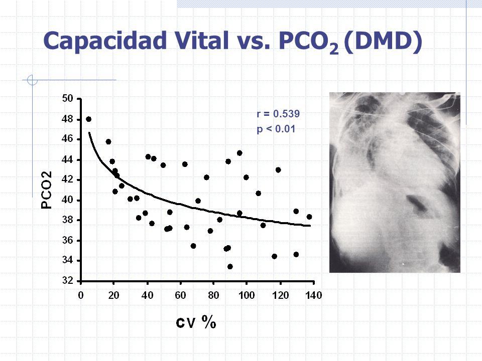 Capacidad Vital vs. PCO 2 (DMD) r = 0.539 p < 0.01