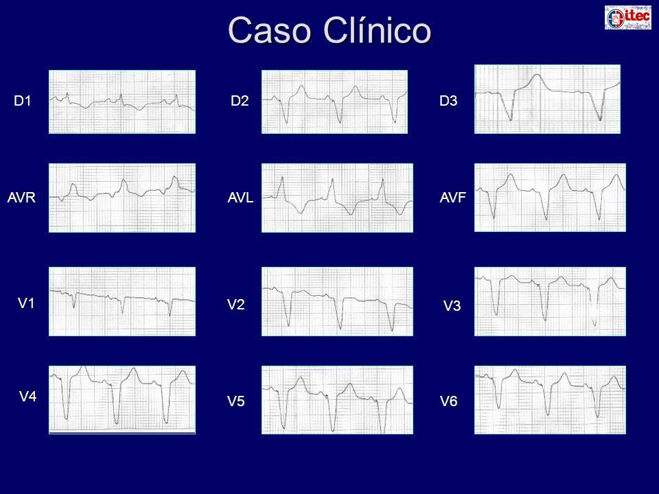 Caso Clínico D1D2D3 AVRAVLAVF V1 V2 V3 V4 V5V6