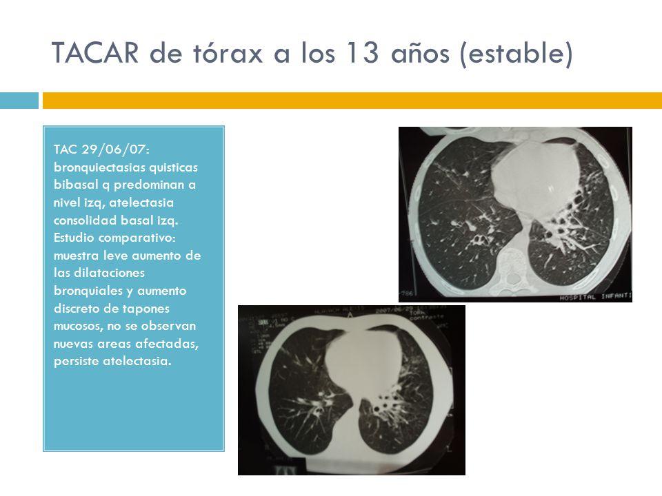 TACAR de tórax a los 13 años (estable) TAC 29/06/07: bronquiectasias quisticas bibasal q predominan a nivel izq, atelectasia consolidad basal izq. Est