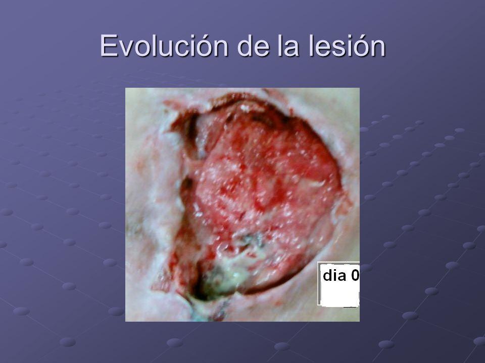Evolución de la lesión