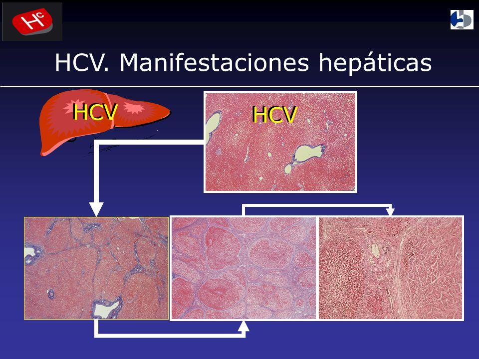 HCV HCV. Manifestaciones hepáticas