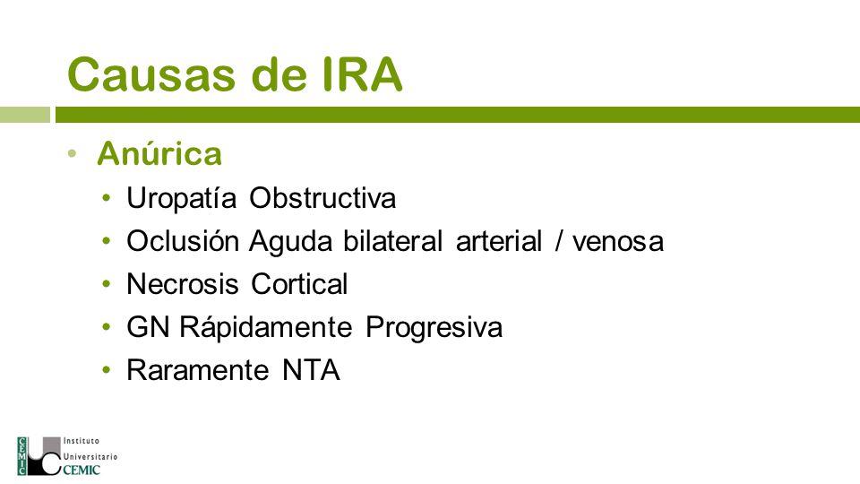 Causas de IRA Anúrica Uropatía Obstructiva Oclusión Aguda bilateral arterial / venosa Necrosis Cortical GN Rápidamente Progresiva Raramente NTA