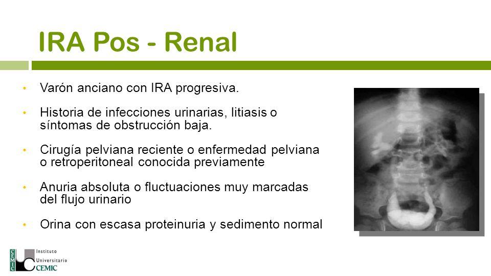 Varón anciano con IRA progresiva. Historia de infecciones urinarias, litiasis o síntomas de obstrucción baja. Cirugía pelviana reciente o enfermedad p