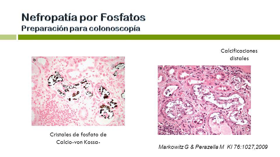 Calcificaciones distales Cristales de fosfato de Calcio-von Kossa- Markowitz G & Perazella M KI 76:1027,2009