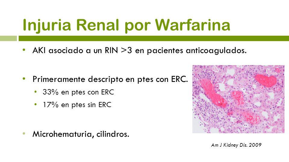 Injuria Renal por Warfarina AKI asociado a un RIN >3 en pacientes anticoagulados. Primeramente descripto en ptes con ERC. 33% en ptes con ERC 17% en p