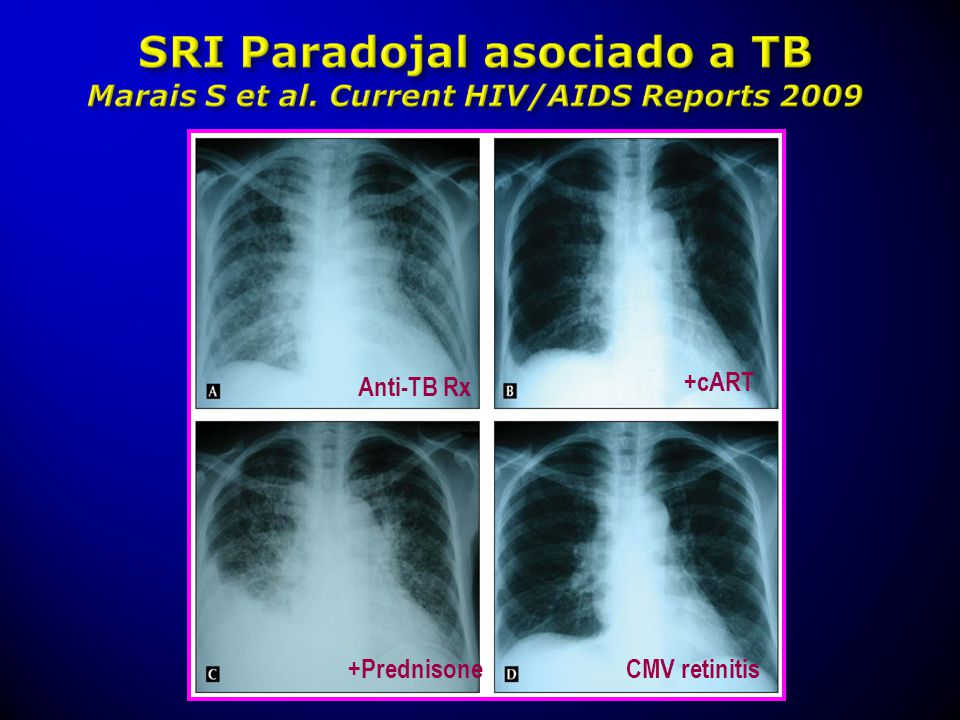 Anti-TB Rx +cART +PrednisoneCMV retinitis