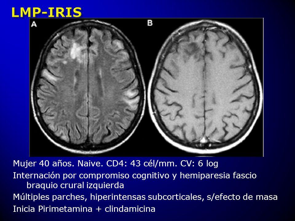 Mujer 40 años. Naive. CD4: 43 cél/mm. CV: 6 log Internación por compromiso cognitivo y hemiparesia fascio braquio crural izquierda Múltiples parches,