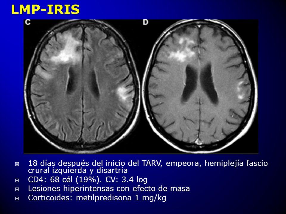 18 días después del inicio del TARV, empeora, hemiplejía fascio crural izquierda y disartria CD4: 68 cél (19%). CV: 3.4 log Lesiones hiperintensas con