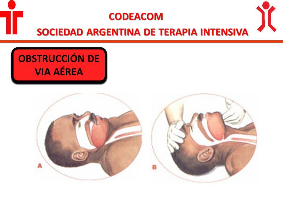 CODEACOM SOCIEDAD ARGENTINA DE TERAPIA INTENSIVA OBSTRUCCIÓN DE VIA AÉREA