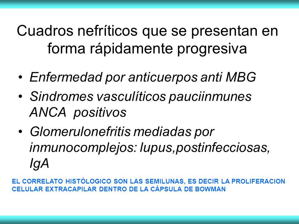 Cuadros nefríticos que se presentan en forma rápidamente progresiva Enfermedad por anticuerpos anti MBG Sindromes vasculíticos pauciinmunes ANCA positivos Glomerulonefritis mediadas por inmunocomplejos: lupus,postinfecciosas, IgA EL CORRELATO HISTÓLOGICO SON LAS SEMILUNAS, ES DECIR LA PROLIFERACION CELULAR EXTRACAPILAR DENTRO DE LA CÁPSULA DE BOWMAN
