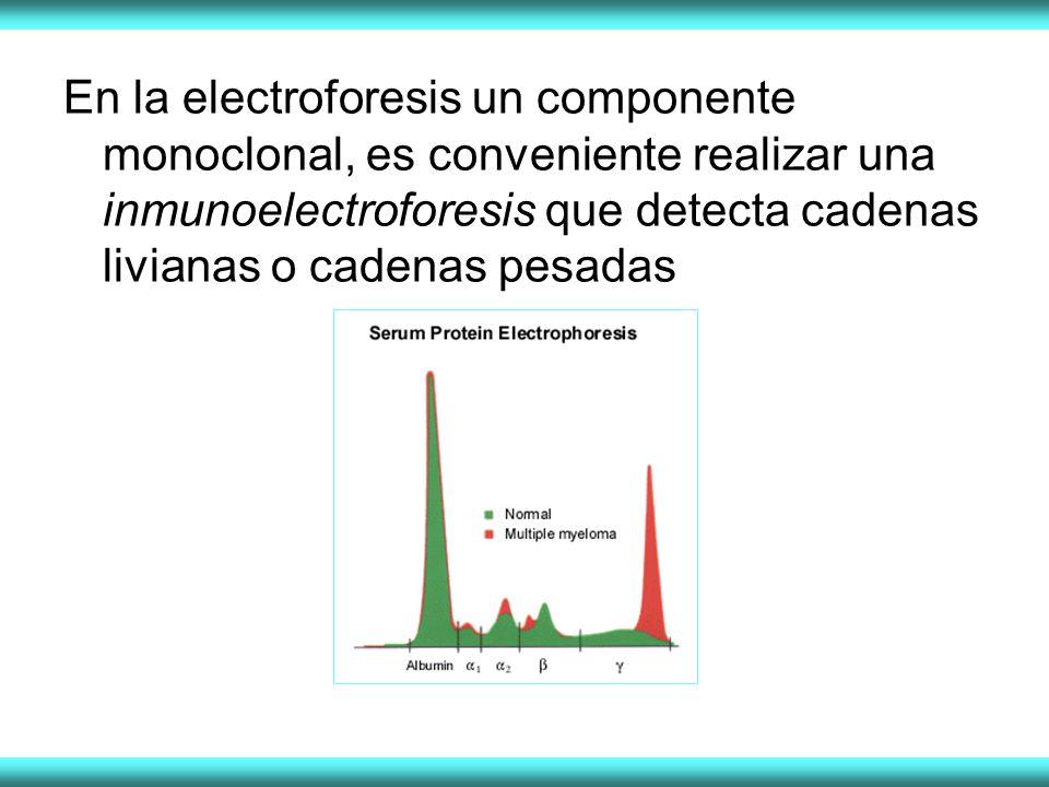 En la electroforesis un componente monoclonal, es conveniente realizar una inmunoelectroforesis que detecta cadenas livianas o cadenas pesadas