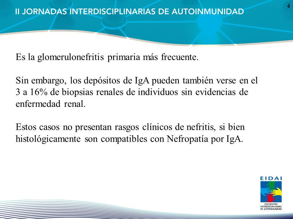 4 Es la glomerulonefritis primaria más frecuente. Sin embargo, los depósitos de IgA pueden también verse en el 3 a 16% de biopsias renales de individu