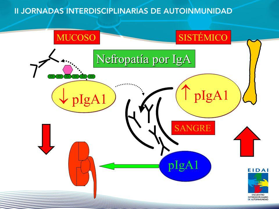 pIgA1 MUCOSO pIgA1 SISTÉMICO Nefropatía por IgA SANGRE pIgA1