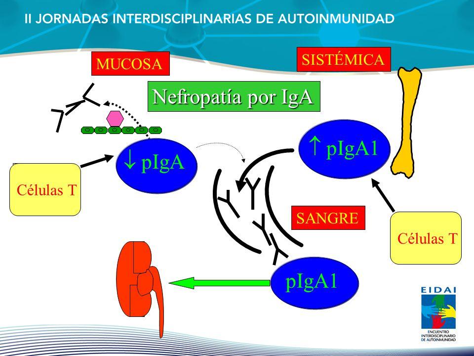 pIgA MUCOSA pIgA1 SISTÉMICA SANGRE pIgA1 Células T Nefropatía por IgA