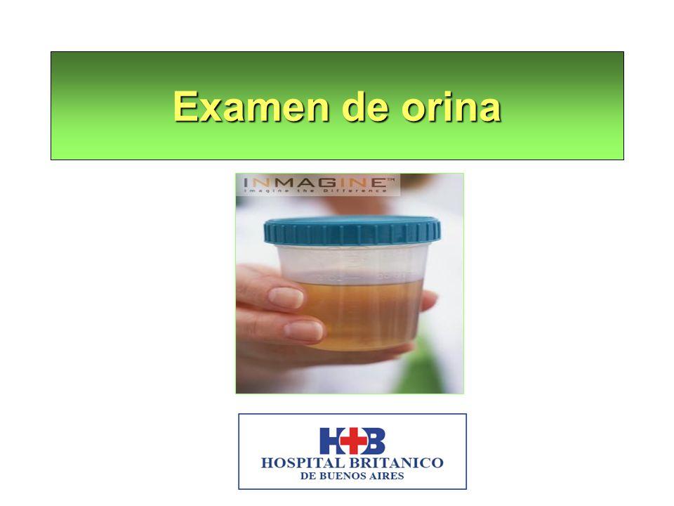 El examen de orina efectuado en forma correcta brinda información sobre: Si la enfermedad renal existe o no.