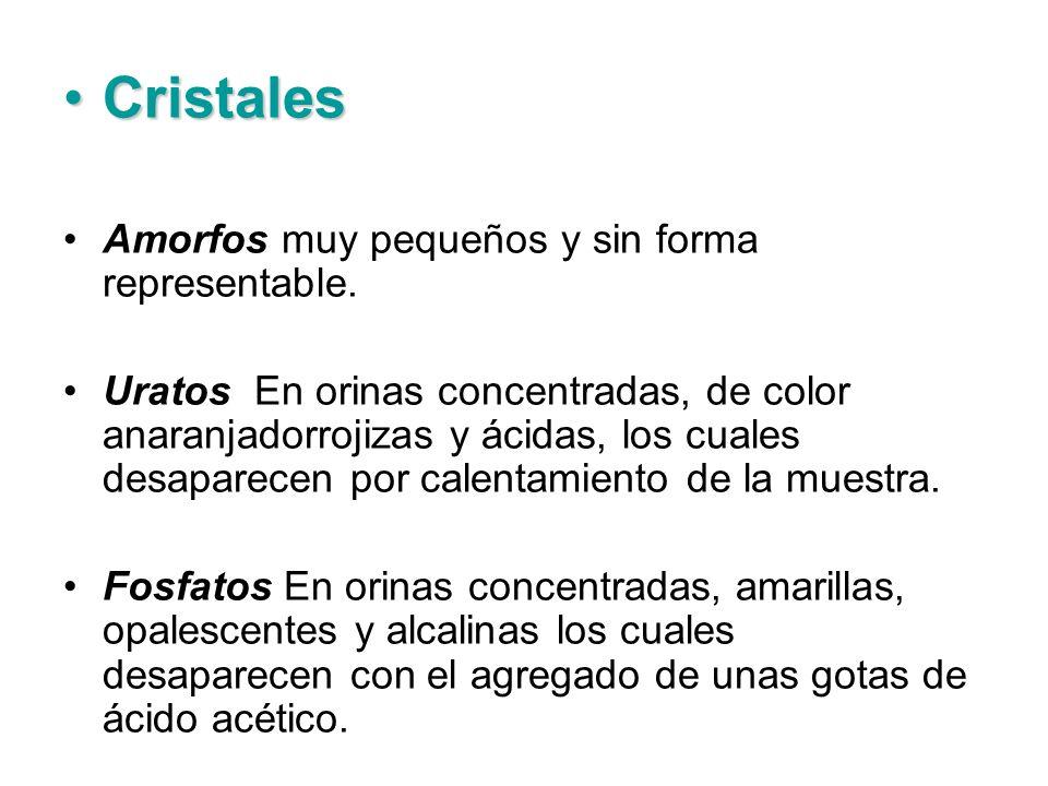 CristalesCristales Amorfos muy pequeños y sin forma representable. Uratos En orinas concentradas, de color anaranjadorrojizas y ácidas, los cuales des