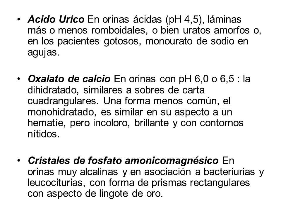 Acido Urico En orinas ácidas (pH 4,5), láminas más o menos romboidales, o bien uratos amorfos o, en los pacientes gotosos, monourato de sodio en aguja
