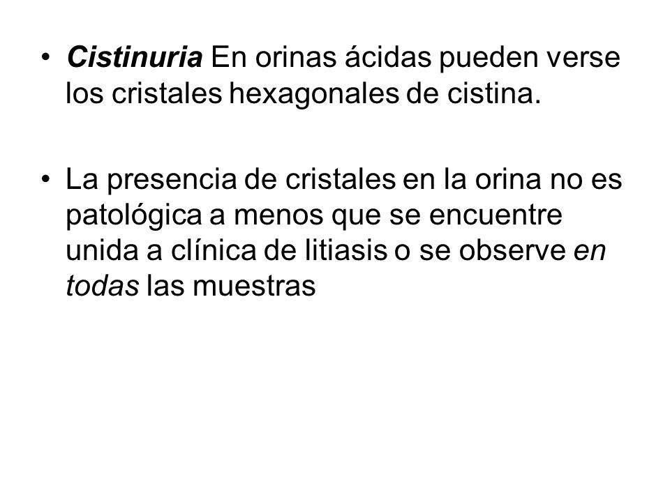 Cistinuria En orinas ácidas pueden verse los cristales hexagonales de cistina. La presencia de cristales en la orina no es patológica a menos que se e