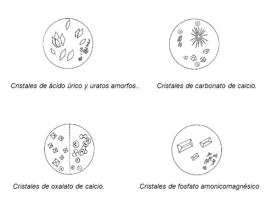 Cristales de ácido úrico y uratos amorfos..Cristales de carbonato de calcio. Cristales de oxalato de calcio. Cristales de fosfato amonicomagnésico