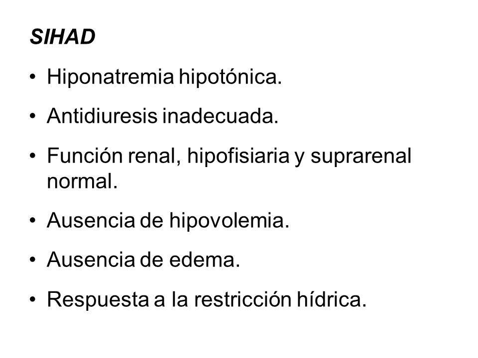 SIHAD Hiponatremia hipotónica.Antidiuresis inadecuada.