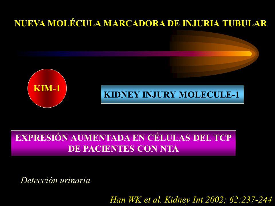 NUEVA MOLÉCULA MARCADORA DE INJURIA TUBULAR KIM-1 KIDNEY INJURY MOLECULE-1 EXPRESIÓN AUMENTADA EN CÉLULAS DEL TCP DE PACIENTES CON NTA Detección urinaria Han WK et al.