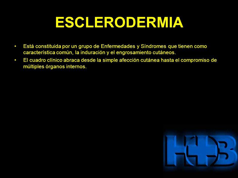 ESCLERODERMIA Está constituida por un grupo de Enfermedades y Síndromes que tienen como característica común, la induración y el engrosamiento cutáneo
